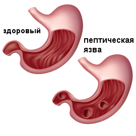 1380124725_peptic_ulcer_image.png